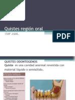 Quistes Región Oral