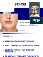 EPISTAXIS .ppt