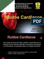Ruidos Cardiacos S1 y S2