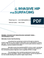 Hip Resurfacing With Computer Navigation Surgery In India – By Trained Surgeons