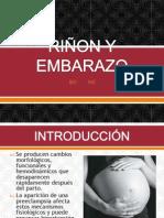 rionyembarazo-130818211150-phpapp02 (1).pptx