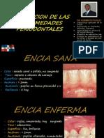 74617626 Clasificacion Enfermedades Periodontales