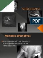 artrografia