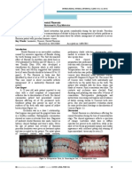 Esthetic Management of Dental Fluorosis