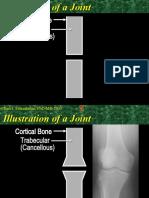Illustration of Arthritis a Joint
