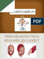 ppt antepartum