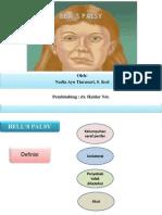 Bell's Palsy- Nadia Ayu