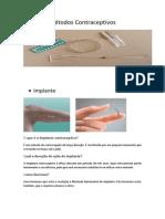 Métodos Contraceptivos Implante
