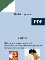 Gastritis agunda.ppt