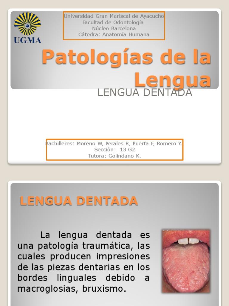Lengua Dentada