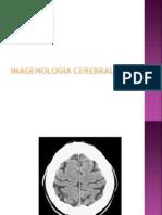 1 . Imagenologia Cerebral
