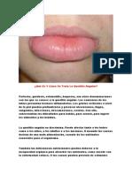 Perleche, Boqueras Remedios Caseros, Estomatitis Bucal, Comisura Labios, Para Labios Partidos