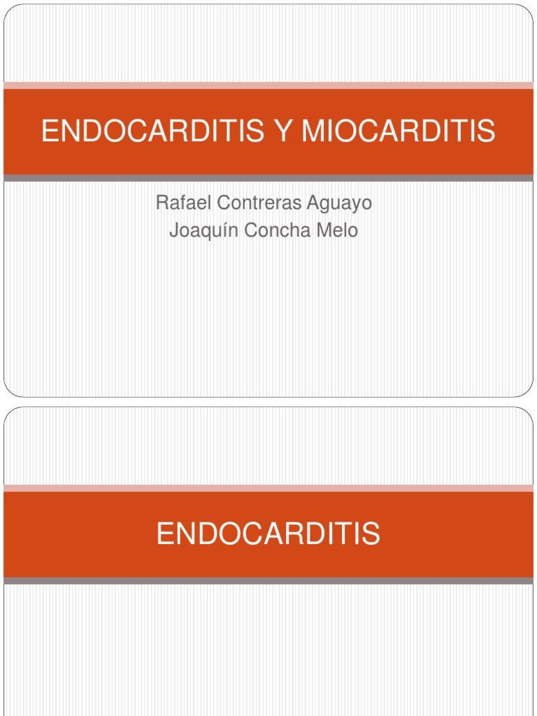 miocarditis aguda harrison