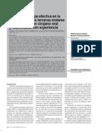 Tiempo de cirugía 3 Molar.pdf