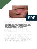 Estomatitis Viral, Crema Para Boqueras, Remedios Caseros Para Boqueras, Boqueras Causa