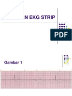 Latihan Ekg Strip