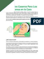 Remedios Caseros Para Los Granos en La Cara