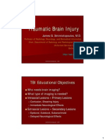 Traumatic Brain Injury Epidural Hematoma