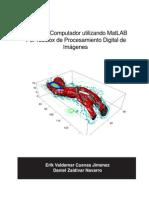 Procesamiento de imagenes con Matlab