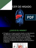 Cancer de Higado[1] (1)