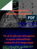 INFECCIONES ODONTOGENICAS 1.ppt