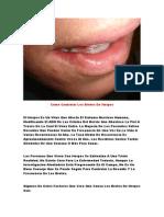 Herpes en La Lengua, Remedios Para Herpes Labial, Tratamiento Del Herpes Zoster
