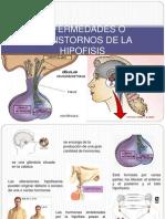 Enfermedades o Transtornos de La Hipofisis