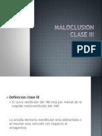 Expo Maloclusion Clase 3 Definitiva