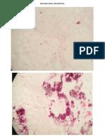 Laminas de Patología (Práctica III y IV)