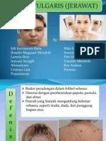 Presentation1 Acne