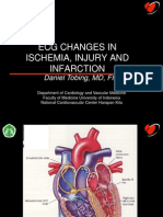 ECG PLD Ischemia and Infarction (Daniel)