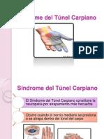 Síndrome Del Túnel Carpiano