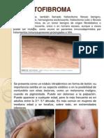 Derma to Fibroma
