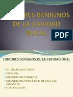 (18) Tumores Benignos de La Cavidad Oral[1]