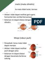 Ringkasan Penyakit Mata