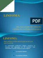 linfoma 2