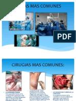 Cirugias Mas Comunes