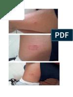 gamb kulit kasus