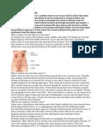 Kidney Stones 1