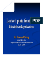 04-Locked Plate Fixation – Principle and Applications