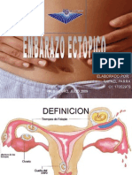 3- Embarazo Ectopico