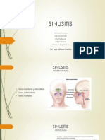 SINUSITIS.pptx