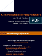 Glomerulopatia membranoproliferativa