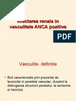 Afectarea renala in vasculitele ANCA pozitive