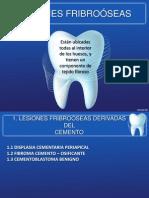 Tumores odontogenicos