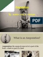Rehabilitation of Lower Limb Amputee Jade