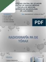 TEMA 2 RADIOGRAFÍA AP Y LATERAL DE TÓRAX.pptx