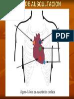 Focos de Auscultacion Cardiaca
