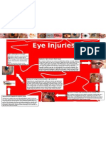 Eye Injuries- Poster
