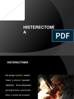 _Histerectomía.pptx_